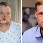 Recipient of the most successful face transplant stunned by the results