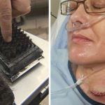 "Doctors Say ""Throw Out Your Grill Brush"" After Seeing Thousands Of Injuries"