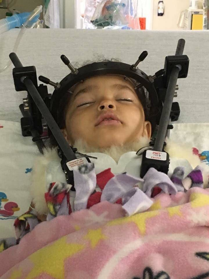 Toddler Miraculously Recovers From Internal Decapitation